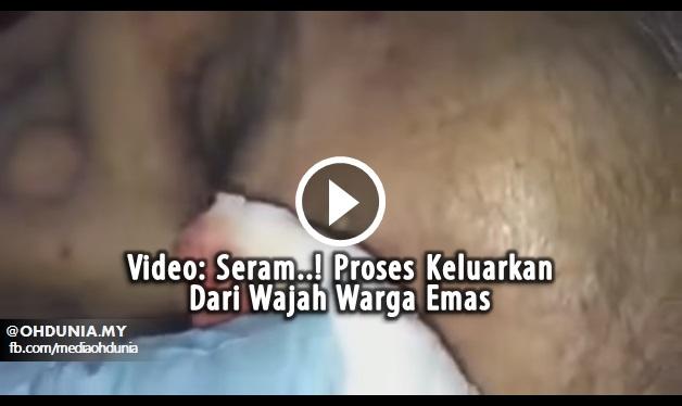 Video: Seram..! Proses Keluarkan Susuk Dari Wajah Warga Emas
