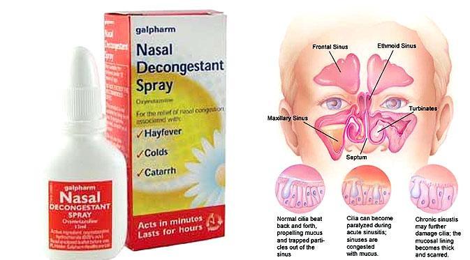 Segera, Obat Nasal Mirip Viagra untuk Wanita Tersedia