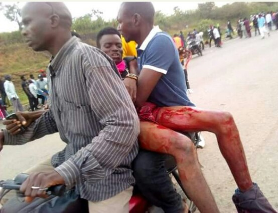 PHOTOS: Shiites Clash With Security In Abuja, Many Shot