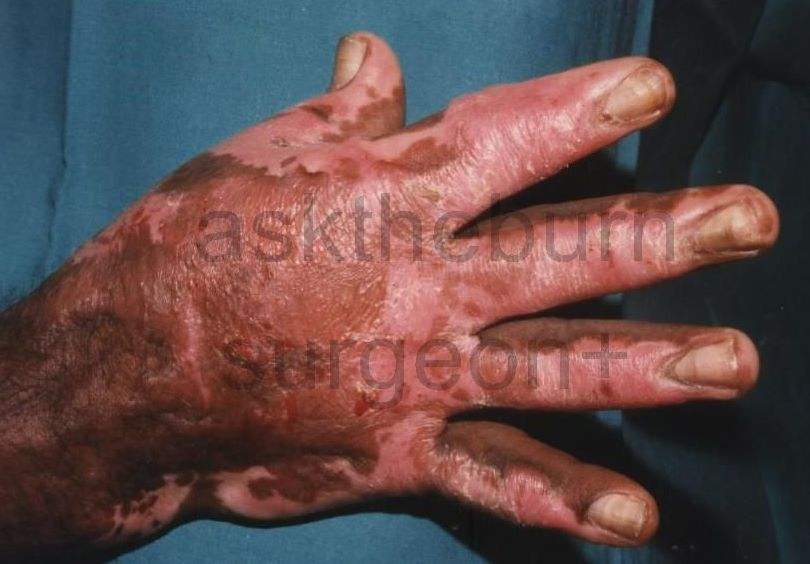 Second-Degree Burn Scars - Bing images