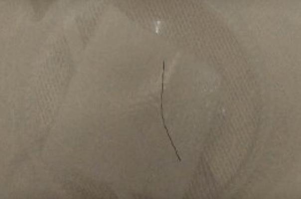 Bocah Ini Merasa Kesakitan di Leher, Setelah Diperiksa Dokter Ada Benda Ini di Tenggorokannya