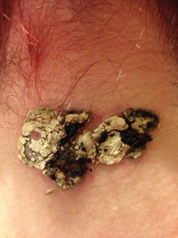 E-Raze Non Laser Tattoo Removal (not good if your ...