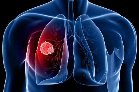Gejala dan Penyebab Pemicu Kanker Paru-paru | Penyakit ...