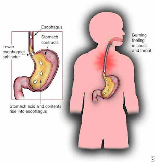 Common reasons behind the occurrence of an acid reflux