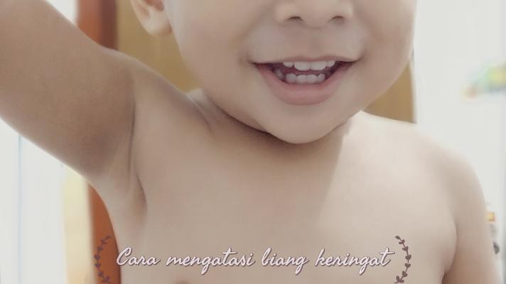 Cara Mencegah dan Mengatasi Biang Keringat Pada Bayi