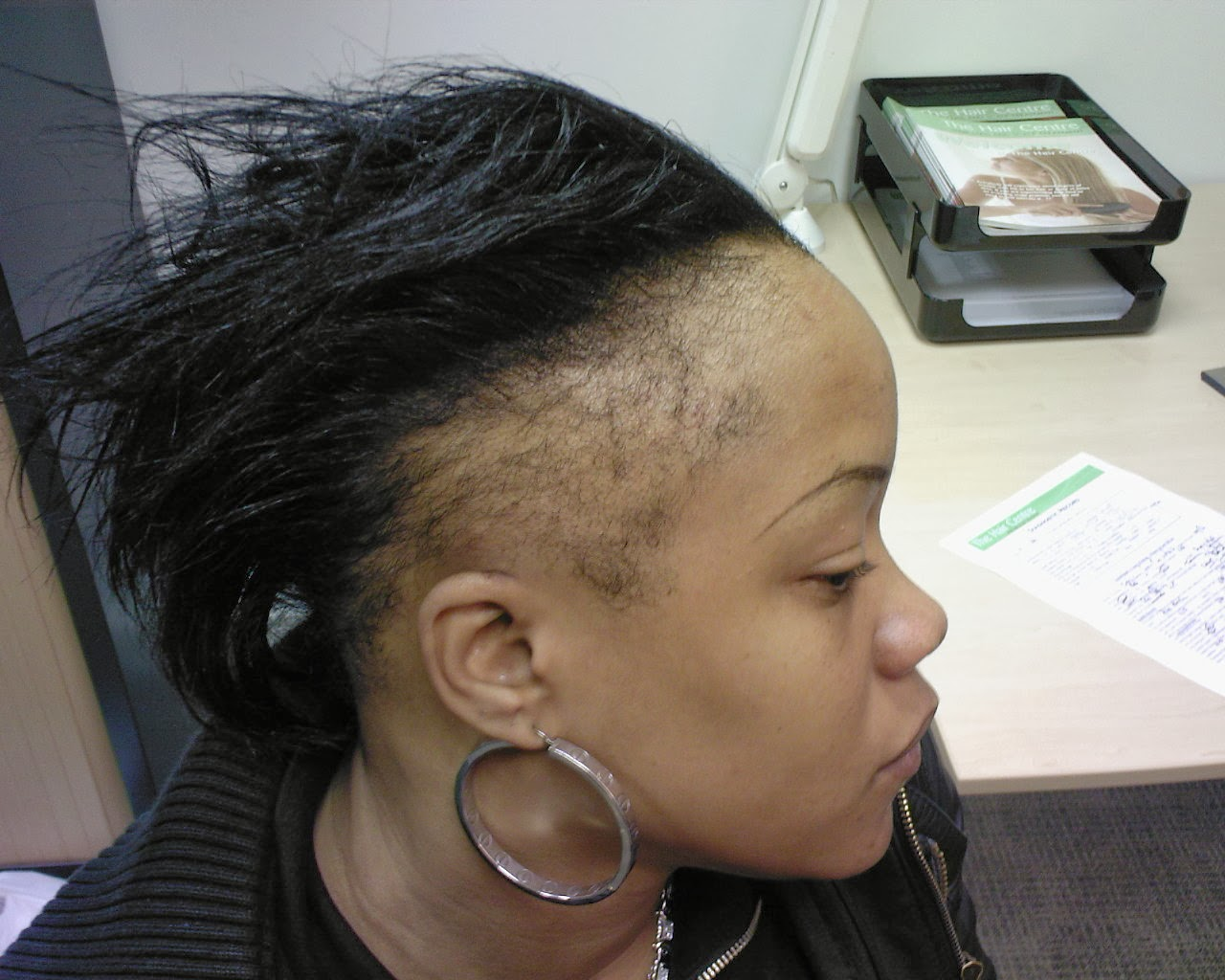 natural and healthy: dealing with sensitive hairline /edges