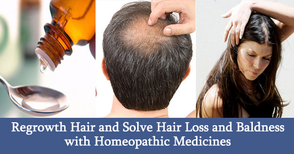 Regrowth Hair and Solve Hair Loss and Baldness with Homeopathic Medicines