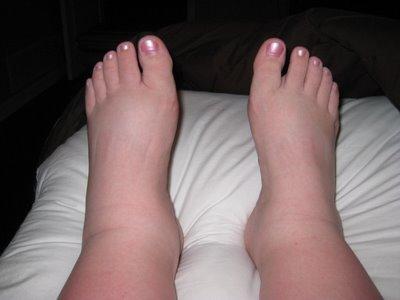 Feet fetish pics — img 2