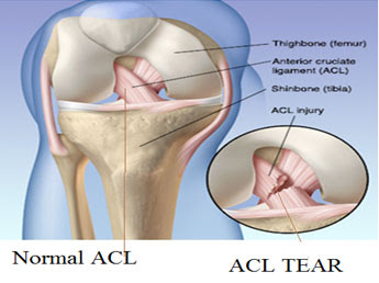 http://drraju.in/treatments-offered/sports-exercise-medicine-sem/acl-reconstruction/index.html