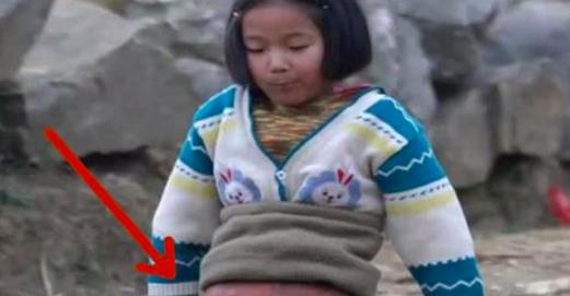 Ils coupent ÇA en 2 et le fourrent dans la fillette de 3 ans. Le résultat lui donne une nouvelle vie.