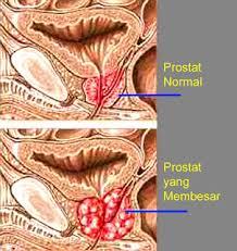 Pantangan Makanan Penderita Prostat