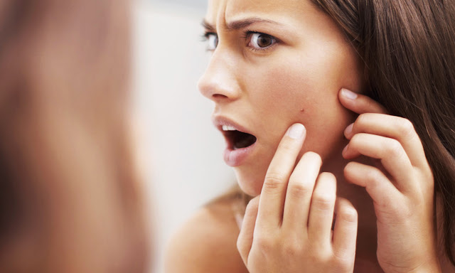 Clogged Skin Pores? Know What You Should & Should Not Include In Your Diet To Stay Blemish-Free