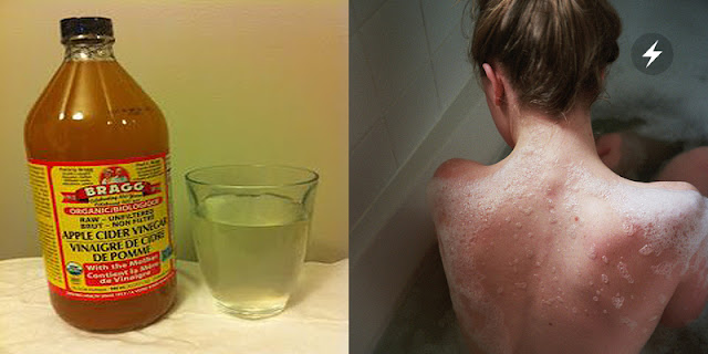 She Put Vinegar In Her Bathtub For This Simple Reason—Her Skin After The Bath Was Amazing!