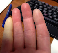 White pinky finger - raynaud's disease