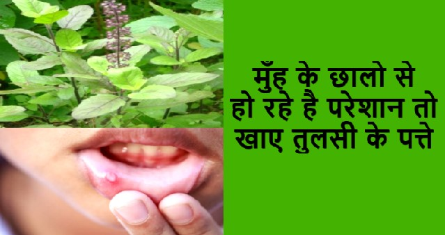 Natural Home remedies for Mouth Ulcers By Baba Ramdev