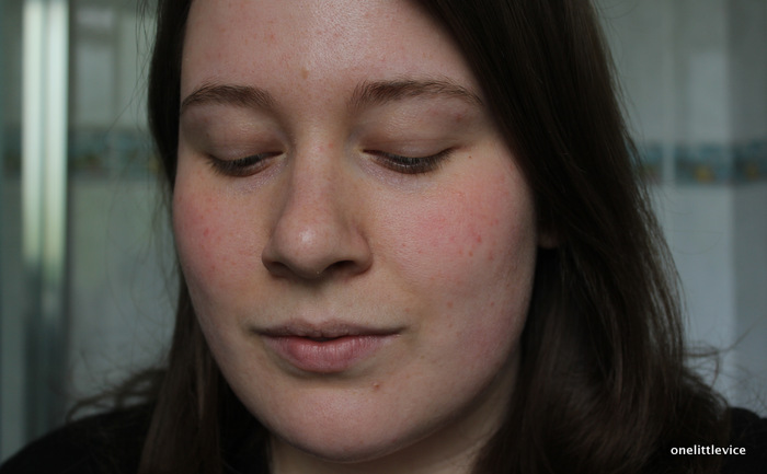 vichy full coverage foundation for scars acne before photo