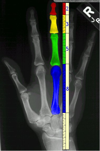 How We Are All Individual Dimensions of Reality Hand-bones-fibonacci