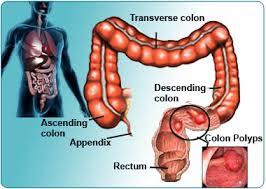 pengobatan polip usus