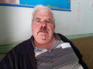 Θα τρώμε και ξύλο τώρα: Αγρότης ζήτησε χρήματα από την πώληση καρπουζιών και εισέπραξε τις γροθιές μπράβου