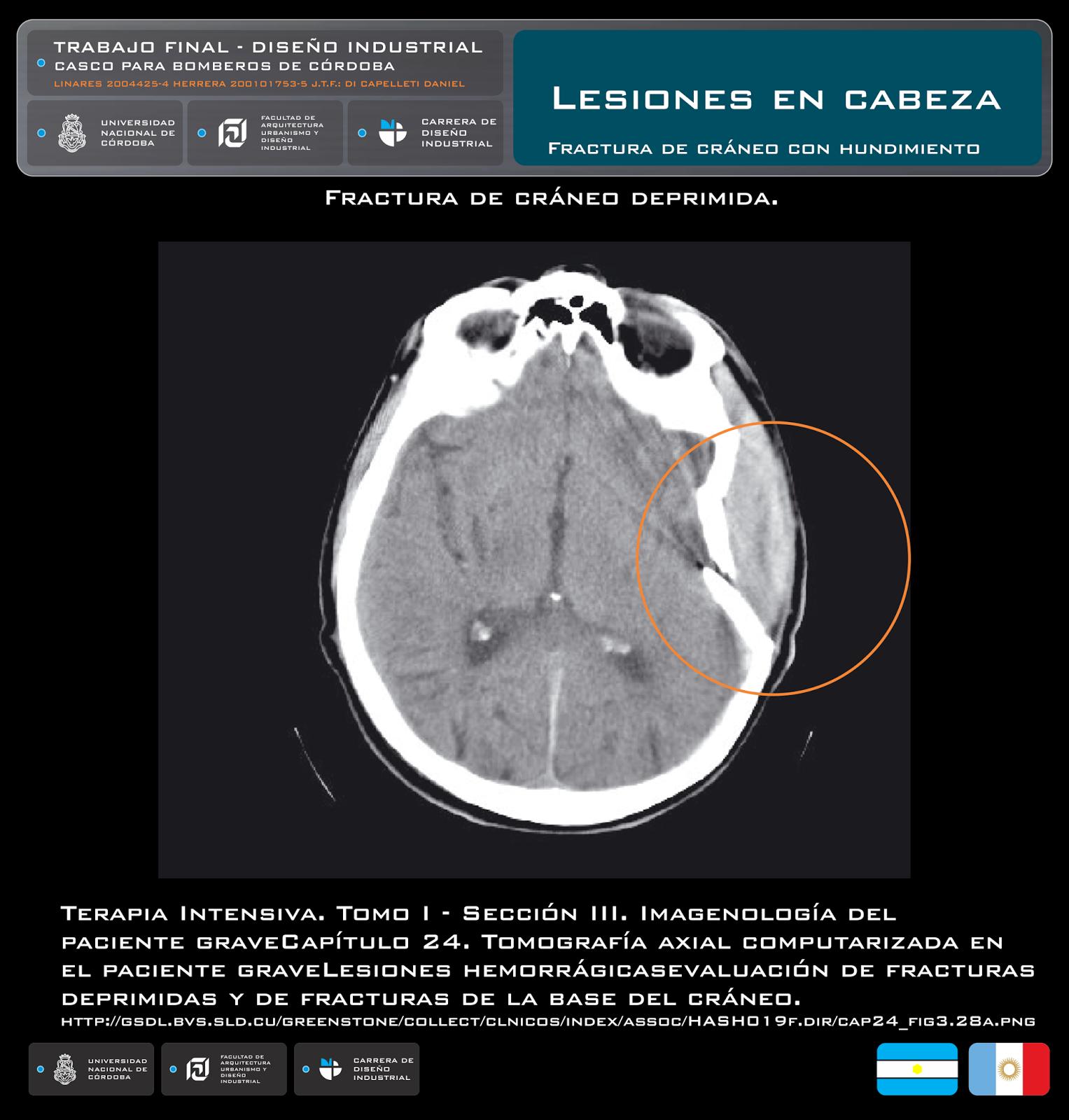 Conmoción cerebral en tomografía computarizada