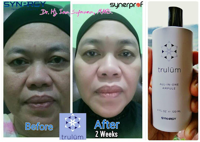 Jual Serum Penghilang Jerawat Trulum Skincare Langgudu Bima