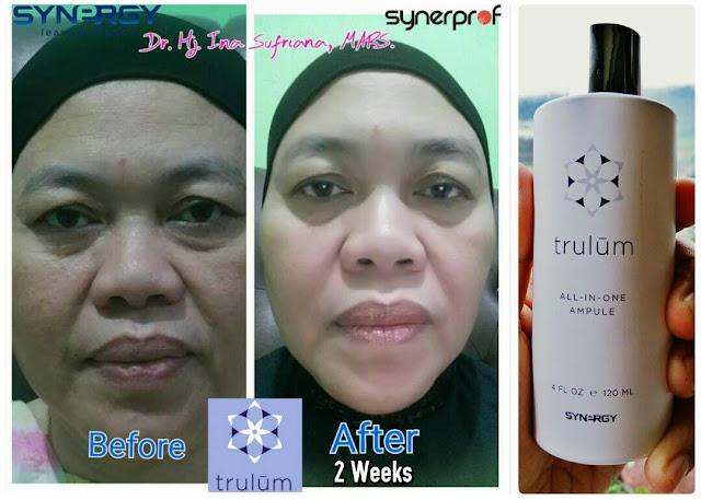 Jual Serum Penghilang Jerawat Trulum Skincare Muara Siau Merangin