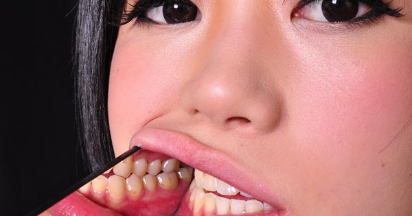 Used able Dental braces sexual fetish love Mia