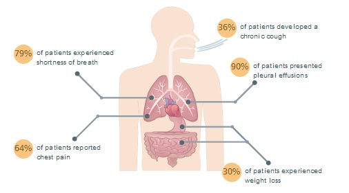 gumoti: What are the Mesothelioma Symptoms