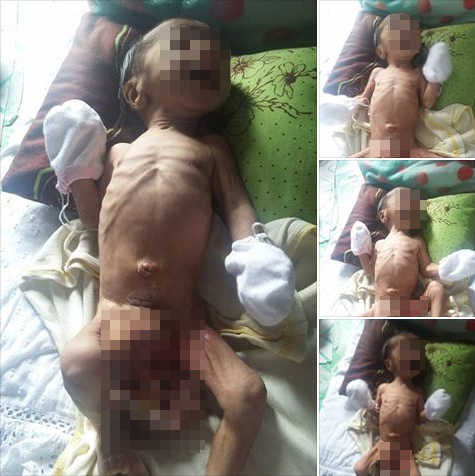 Baby With Extraordinary Severe Condition Asks Netizens For Help!