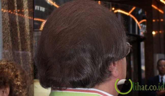 Spray-On Hair (Spray Penutup Kebotakan)