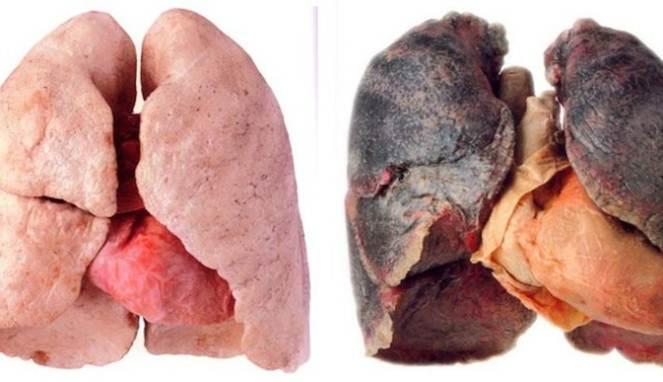 Konsumsi 4 Buah ini Bantu Bersihkan Racun Rokok