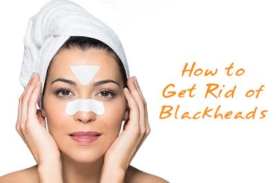 How to Remove Blackheads