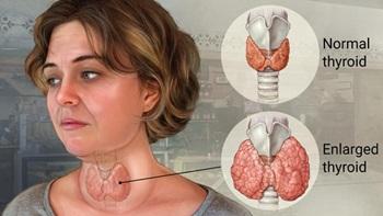 cara mengobati penyakit gondok tanpa operasi