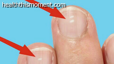 why white spots appear on nails