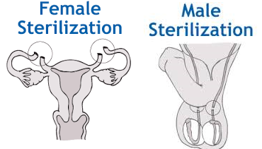 Birth Control Guide - Female and Male Sterilization