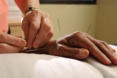 Acupuncture to prevent smoking