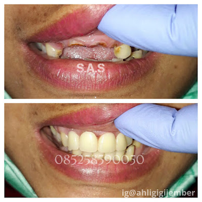 foto hasil pemasangan gigi tiruan lepas pasang ahli gigi jember pati