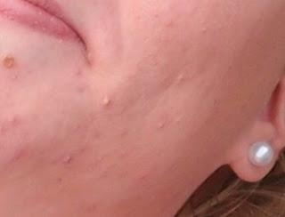 Remède de grand-mère contre les boutons d'acné