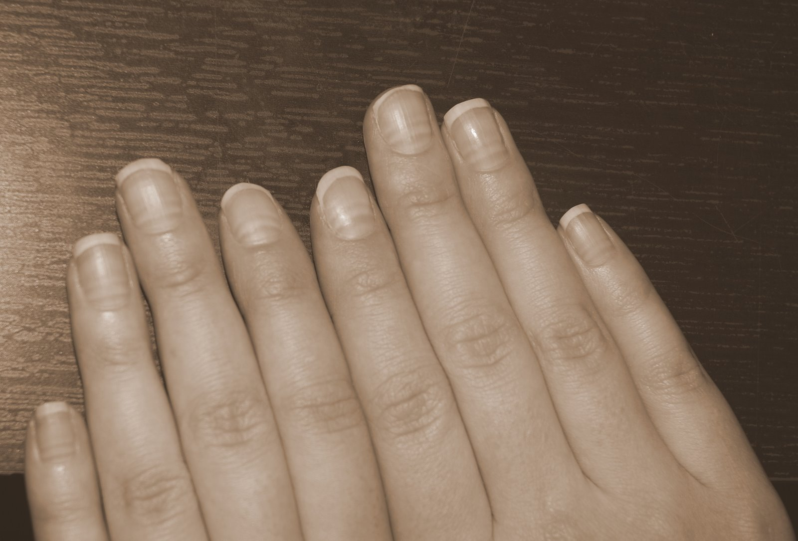 valkoisia viivoja kynsissä