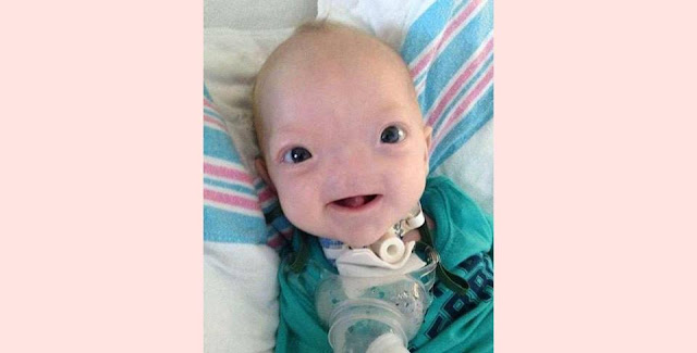 'Miracle baby' born without a nose dies at age two,entertainment news