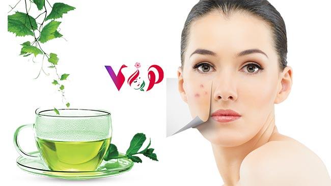 Yeşil Çay Akne Tedavisinde Nasıl Kullanılır - viphanimlar.com