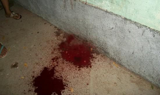 Resultado de imagem para bala e sangue
