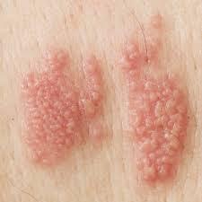 Pengobatan Yang Ampuh Basmi Penyakit Herpes Secara Total