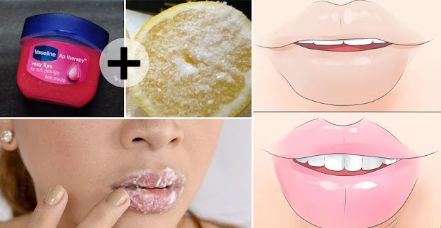 Want Pink And Smooth Lips - Try These 10 Home Remedies And Achieve Pink Lips In No Time!