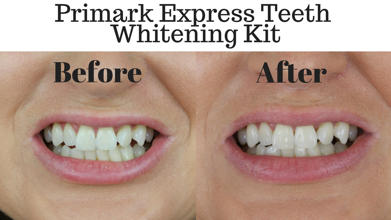 Does Teeth Whitening Strips Work Teethwalls