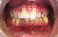 gingivitis, cause of bad breath
