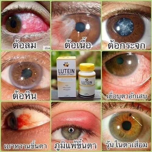 WIR ปัญหาดวงตา แก้ไขได้ด้วยธรรมชาติ ช่วยดูแล ฟื้นฟู บำรุงดวงตาจากภาวะเสื่อม