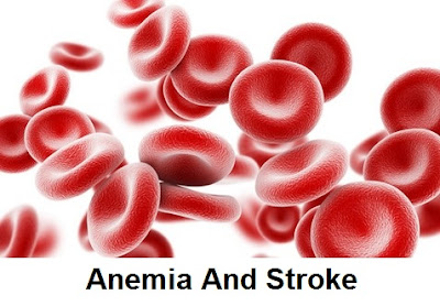 Elderly people with anemia have a higher risk of post Articles About Anemia Disease And Stroke: According To The Researchers