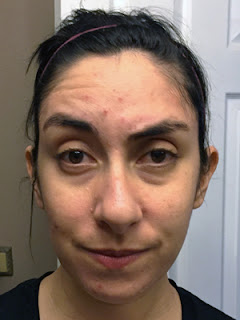 2 Weeks on Tretinoin – 6 Month Review :: The Acne Experiment