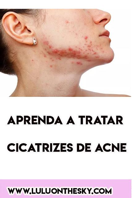 APRENDA  A TRATAR CICATRIZES DE ACNE